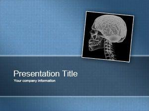 Schizophrenia PowerPoint Template